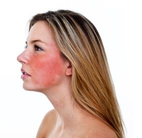 Krema proti rdečici obraza