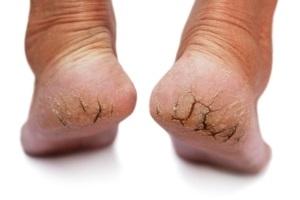 Krema za stopala