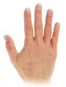 Krema za razpokane roke