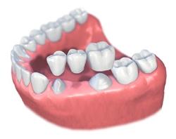 Zobna nitka za mostičke in implante