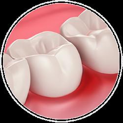 Zobna nitka Periodontal
